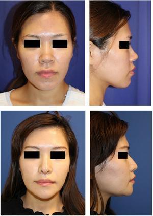 あご先骨切術、鼻尖縮小術、鼻中隔延長術、鼻尖部軟骨移植術、鼻背部皮切り術、人中短縮術 術後約3か月 - 美容外科医のモノローグ