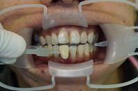 ホワイトニングで白い歯に - Dr細田のブログ