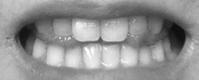 トランペットを吹くときの舌の形 - トランペットな日々