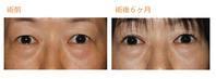 右目二重(全切開法)術後6ヶ月目 - Dr勝間田のブログ