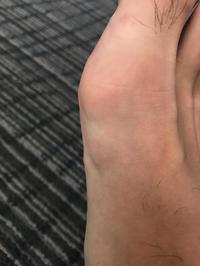 なんかやっぱり腫れている。 - 医療用ブログ〜最近は私の足の痛みと子宮頸部高度異形成についての治療記録〜