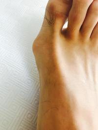 画像ではあまりわからないけれど、触ると少し腫れているのはわかる。 - 医療用ブログ〜最近は私の足の痛みと子宮頸部高度異形成についての治療記録〜