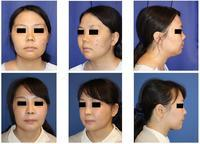 頬骨V字骨切術、鼻尖縮小、鼻中隔延長術、鼻口唇角形成術、鼻プロテーゼ留置術、鼻尖部婦人科軟部組織移植術、顎および頬ベイザー脂肪吸引 - 美容外科医のモノローグ