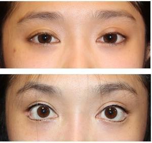 たれ目形成、目じり切開 術後約14か月再診時 - 美容外科医のモノローグ