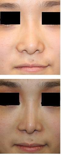 鼻尖レーザー、小鼻肉厚減幅術、鼻根縮小術、鼻尖上部縮小術、鼻翼上部縮小術、小鼻縮小術(flap法) - 美容外科医のモノローグ