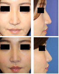 他院術後オーダーメイド眉間・鼻プロテーゼ入れ替え、他院鼻尖部軟骨移植術後修正術、鼻尖縮小レーザー、小鼻縮小術、鼻口唇角形成術 - 美容外科医のモノローグ
