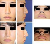 他院鼻尖部軟骨移植術後軟骨除去手術、鼻尖上部縮小術、小鼻肉厚減幅術、鼻口唇角形成術、鼻背皮切り術 - 美容外科医のモノローグ