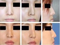 鼻孔縁挙上術約八年再診時 - 美容外科医のモノローグ