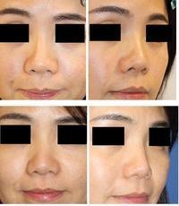 他院鼻L型 プロテーゼ抜去、PPP+PRP、MIS糸を使用したプチ鼻尖縮小術 - 美容外科医のモノローグ
