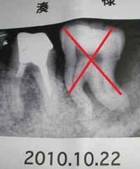 左下奥歯の抜歯後、その隣奥歯の救済 - RÖUTE・G DRIVE AFTER DEATH