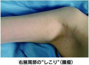 軟部腫瘍 その1 症状 - 横浜市南区弘明寺 原整形外科医院のブログ