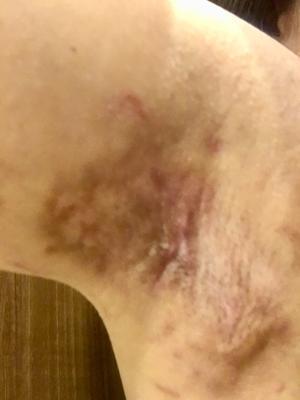 手術約1ヶ月後 (※【傷画像注意】※) - 女だけどワキガの手術をしました。