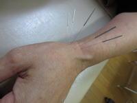 腱鞘炎になった日進市の女性 - 日進市のトライ鍼灸接骨院ブログ