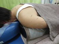 四十肩の治療・はるばる春日井から - 日進市のトライ鍼灸接骨院ブログ