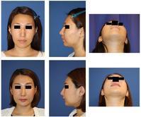 頬骨V時骨切術、上下歯槽骨骨切後方移動術(セットバック)術後約半年 - 美容外科医のモノローグ