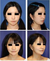 中顔面短縮術(上顎LeFortⅠ型骨切術+下顎矢状分割術)+顎先骨切前方移動術 - 美容外科医のモノローグ