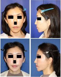こめかみリフト、ミッドフェイスリフト(エンドタインミッドフェイスリフト) - 美容外科医のモノローグ