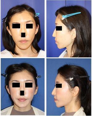 こめかみリフト、ミッドフェイスリフト(エンドタイン ミッドフェイスリフト) - 美容外科医のモノローグ