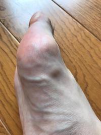 うーん、この結節は何なのでしょう。 - 医療用ブログ〜最近は私の足の痛みは少し落ついてきました。子宮頸部高度異形成についての治療記録〜