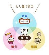 むし歯の原因は?どうやって防ぐの? - Teeth Whitening FAQ and Dental News for Dentists