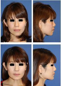 口元をひっこめる手術:上下歯槽骨骨切術(セットバック手術)術後約4か月 - 美容外科医のモノローグ