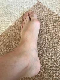 左足の痛みというか痺れは少しありますね。 - 医療用ブログ〜最近は私の足の痛みは少し落ついてきました。子宮頸部高度異形成についての治療記録〜