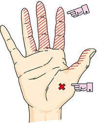 手根管症候群 症状 - 横浜市南区弘明寺整形外科リハビリ「原整形外科医院」のブログ
