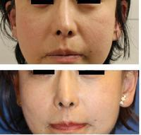 顔面若返りFAMI法(fat autograft muscular injection ) +法令線PDRN(Polydeoxyribonucleotide)注射(サーモン注射) - 美容外科医のモノローグ