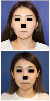 頬骨V字骨切術+頬骨基部骨削り術術後約半年再診 - 美容外科医のモノローグ
