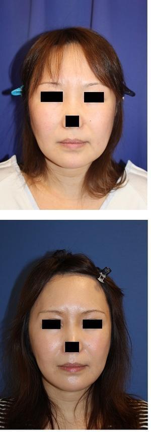 エラ削り + 下顎骨外板切除  術後約半年再診時 - 美容外科医のモノローグ
