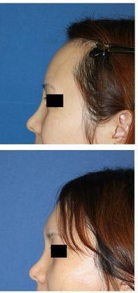 眉間アパタイト術後3か月 - 美容外科医のモノローグ