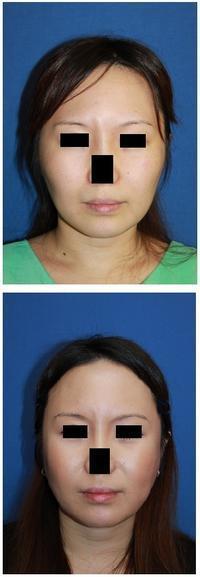 頬骨頬骨再構築法、ミラクルリフト術後約半年 - 美容外科医のモノローグ