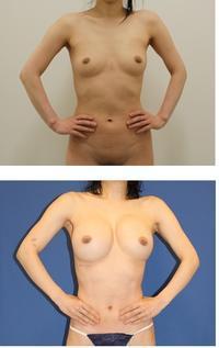 他院セリューション脂肪移植豊胸後当院脂肪移植豊胸術(ベイザー脂肪吸引、ピュアグラフト併用、幹細胞増殖因子併用)2クール術後術後約半年 - 美容外科医のモノローグ