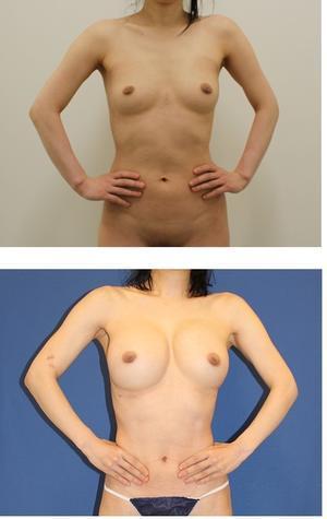 他院セリューション脂肪移植豊胸後  当院脂肪移植豊胸術(ベイザー脂肪吸引、ピュアグラフト併用、幹細胞増殖因子併用)  2クール術後  術後約半年 - 美容外科医のモノローグ