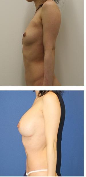 二の腕や腹部より脂肪を採取し 乳房 へ移植 - 美容外科医のモノローグ