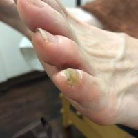 【施術例】爪の肥厚 - さいたま市のフットケア hinata日記