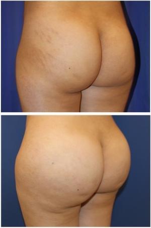 肉割れ 治療  (炭酸ガス および レーザー)+ 脂肪移植豊尻術 - 美容外科医のモノローグ