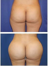 脂肪移植豊尻術 - 美容外科医のモノローグ