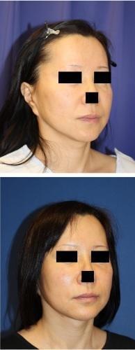 ほうれい線剥離術、FAMI法(Fat autograft muscle injectionmethod),術後約半年再診時 - 美容外科医のモノローグ