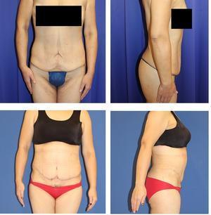 腹部タミータック 術後約5か月再診時 - 美容外科医のモノローグ