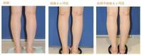 フクラハギを細くする手術(LDDN法)術後6ヶ月目 - Dr勝間田のブログ