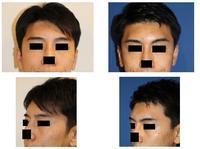 眉骨アパタイト形成術術後約半年再診時 - 美容外科医のモノローグ