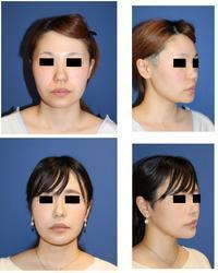 スマスリフト、鼻翼基部アパタイト形成術、ベイザー顎下脂肪吸引、ミントリフト術後約半年再診時(顎先骨切術、小鼻縮小より術後2年) - 美容外科医のモノローグ