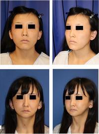 中顔面短縮術(LeFortⅠ 型骨切術+SSRO)、下顎骨スティック骨切術、頬骨V字骨切術+頬骨基部削り、額アパタイト形成術術後約半年再診時 - 美容外科医のモノローグ