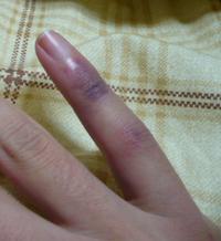 小指負傷。 - ネマム日記