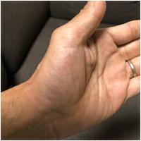 母指CM関節症が接近中? - アキタンの年金&株主生活+毎月旅日記