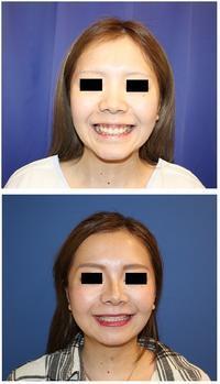 中顔面短縮術(LeFort一型骨切術+下顎矢状分割術)、頬骨V字骨切術 - 美容外科医のモノローグ