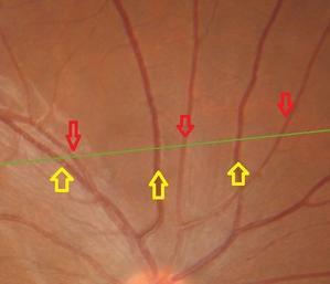 網膜の血管(?)が見える - 河野眼科Q&Aブログ