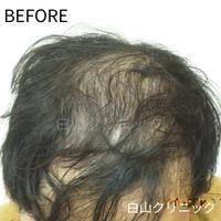 AGA(男性型脱毛症)治療 - 大分の美容外科 白山クリニックブログ