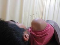 野球で肩を痛めた東郷町の中学生(野球肩) - 日進市のトライ鍼灸接骨院ブログ
